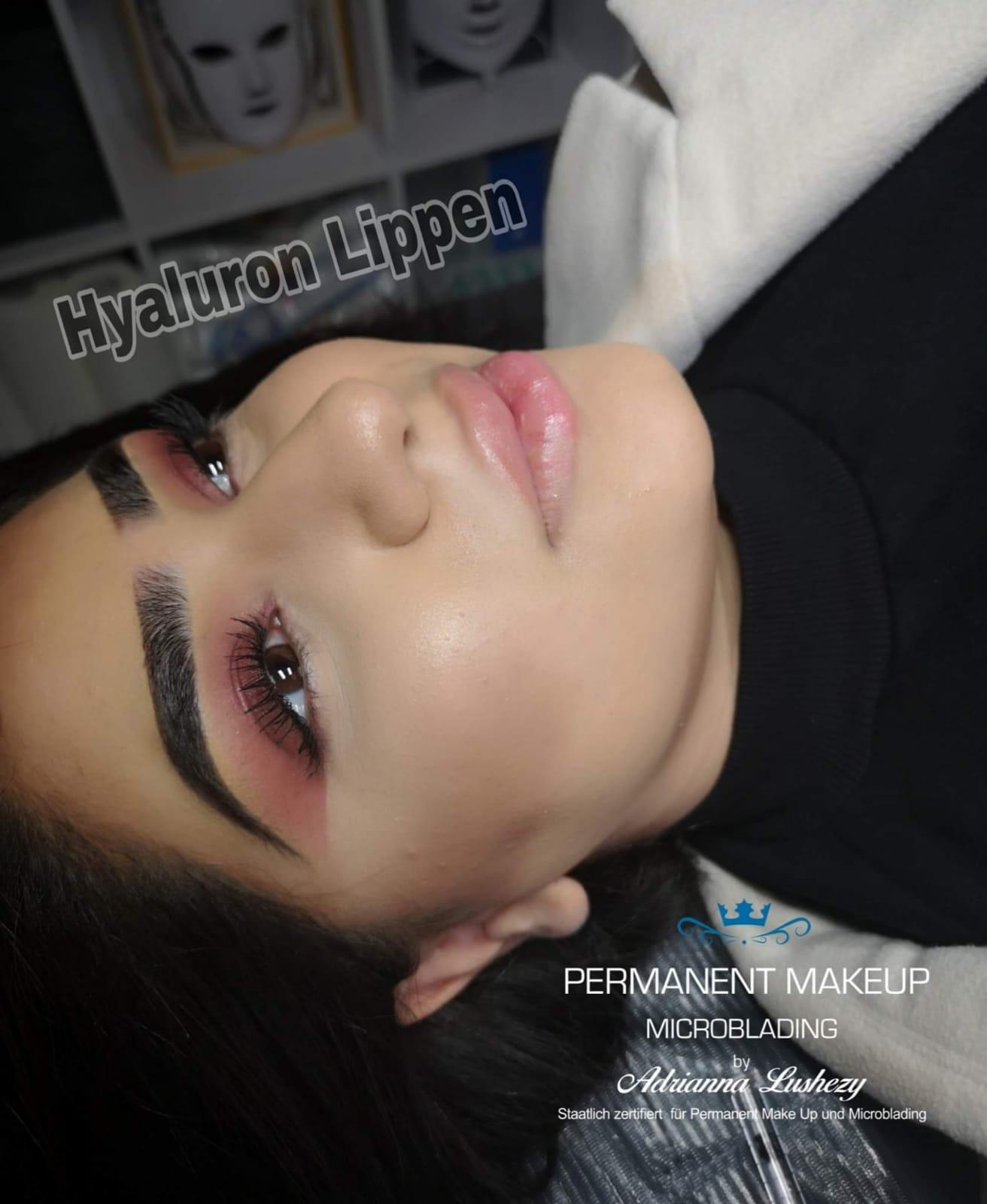 hyaluron-pen-wien-1